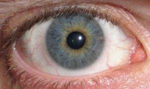 eye_central_heterochromia_crop_and_lighter